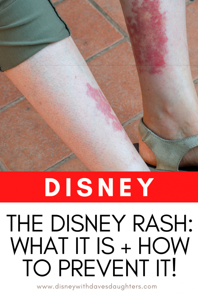 Disney Rash - What It Is, How to Prevent It and How to Treat It