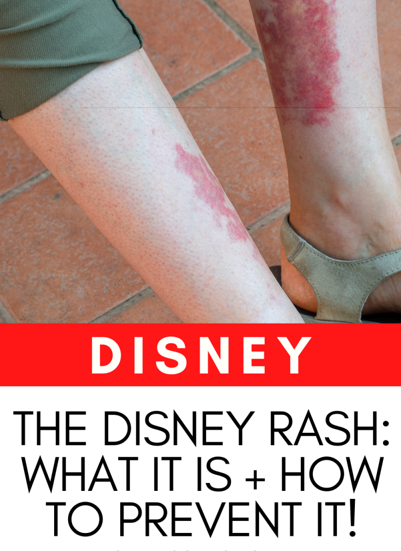 Disney Rash – What it is + How to Prevent it